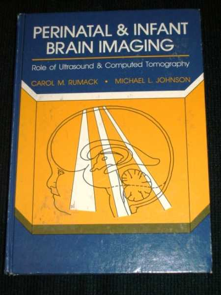 Image for Perinatal and Infant Brain Imaging: Role of Ultrasound and Computed Tomography